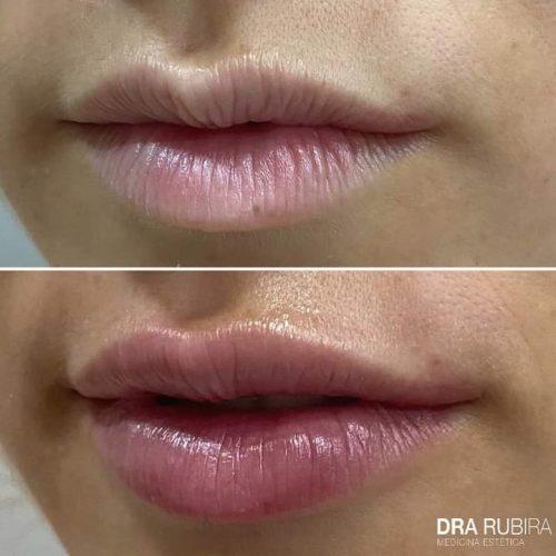 antes-despues-labios